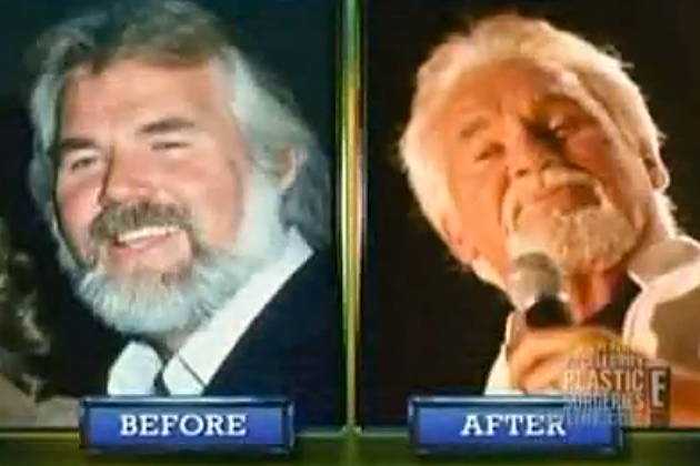 Kenny Rogers Surgery